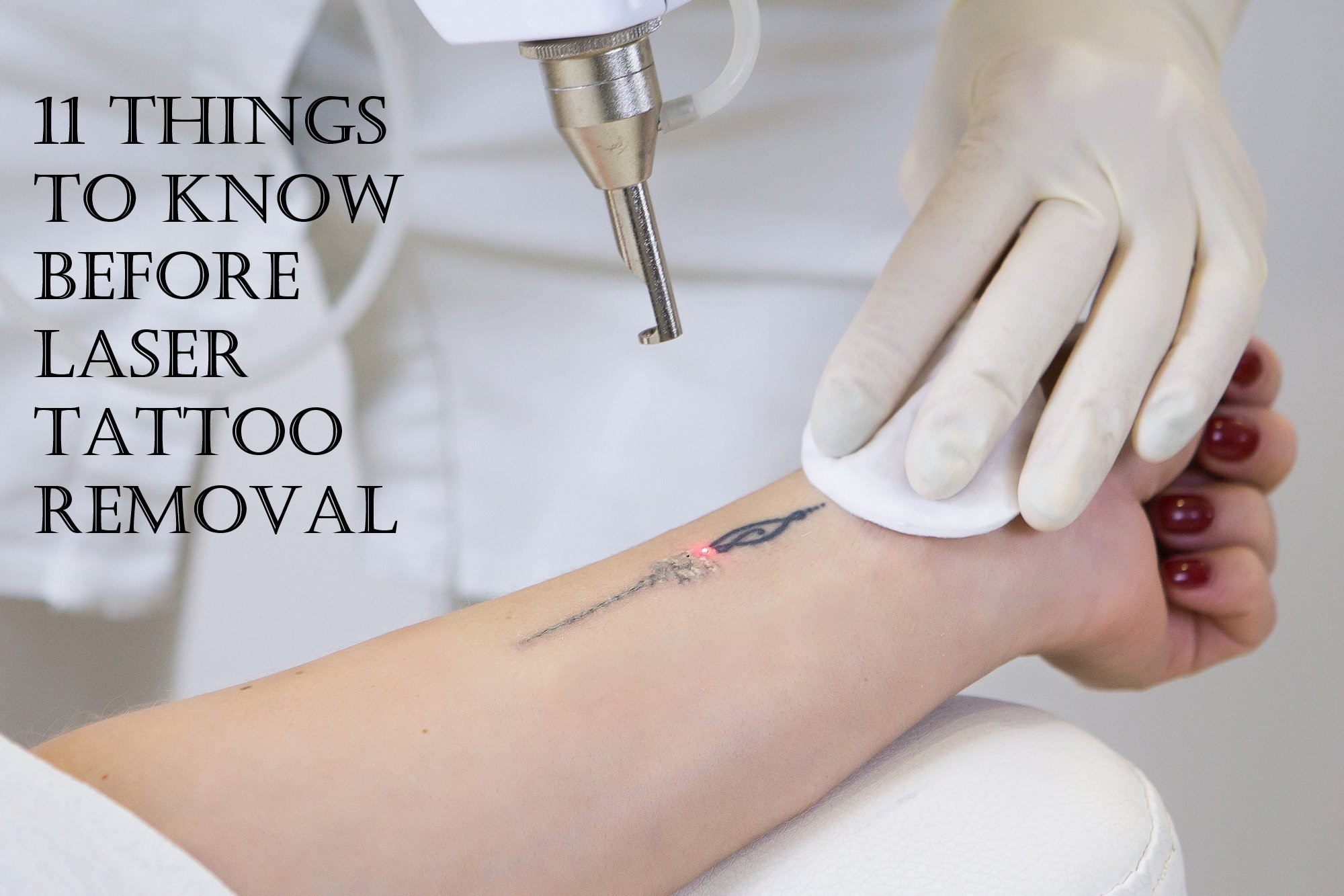 11 Things To Know Before Laser Tattoo Removal